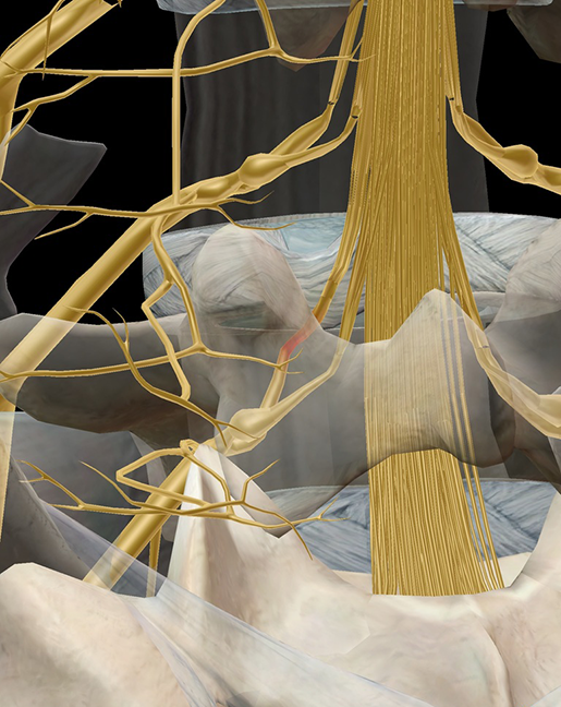 sciatica-pinched-nerve-root-herniated-disc