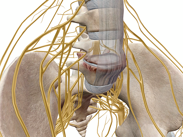 collapsed-intervertebral-disc-muscles-kinesiology