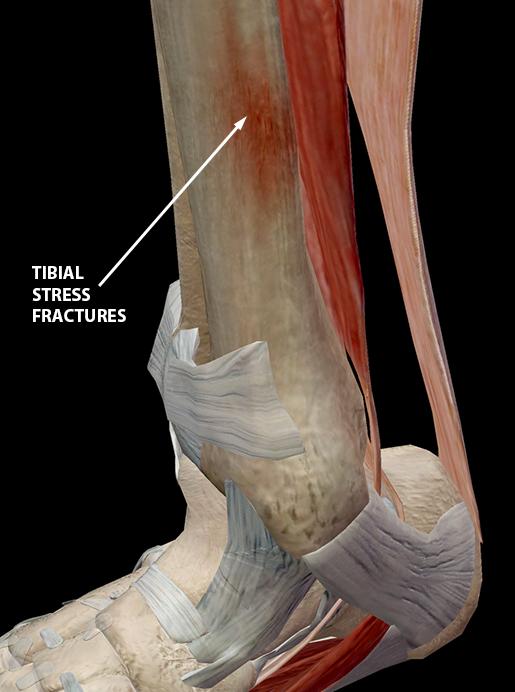 shin-splints-tibia-stress-fracture