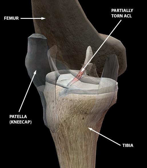 sports-injuries-acl-tear-knee-sprain