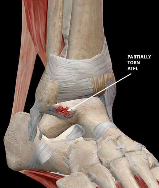 sports-injuries-grade-2-ankle-sprain-w3