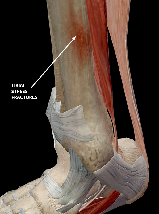 sports-injuries-tibia-stress-fracture
