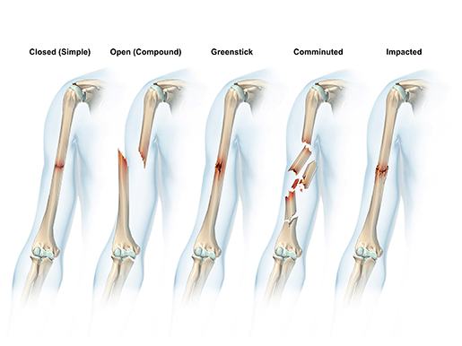 sports-injuries-types-of-fractures-simple-compound