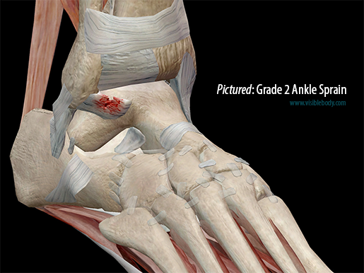 Pictured: Ankle sprain