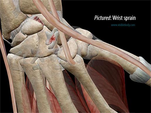 Pictured: Wrist sprain