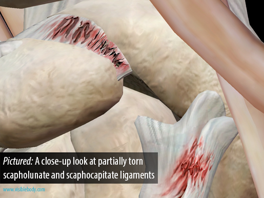 Pictured: Close-up look at torn scapholunate and scaphocapitate ligaments
