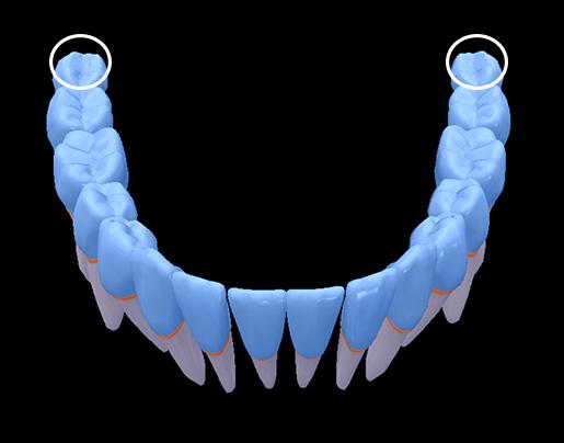 wisdom-teeth-bottom