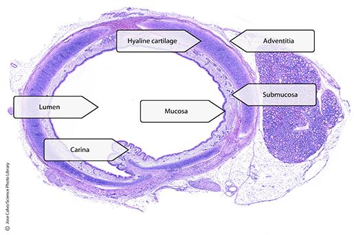trachea-wall-histology-updated