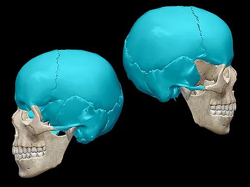 Calavaria-neurocranium-skull-bones