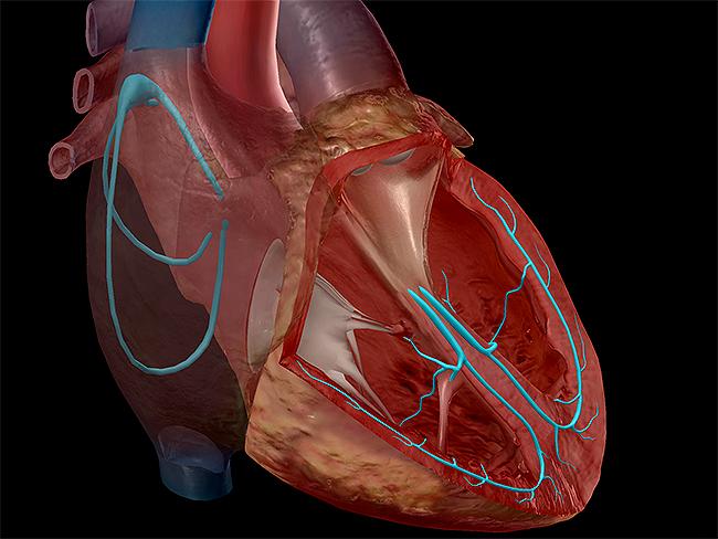 Heart-conduction-system-purkinje-fibers-sinoatrial-node
