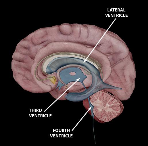brain-ventricles-update