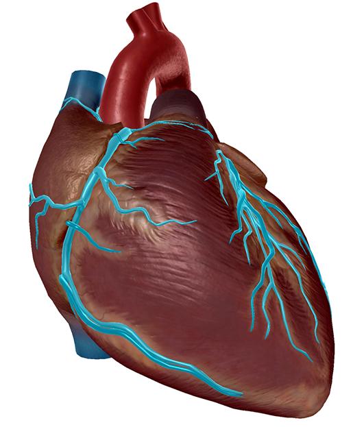 heartattack2