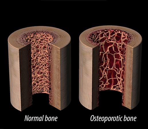 normal-healthy-bone-osteoporotic