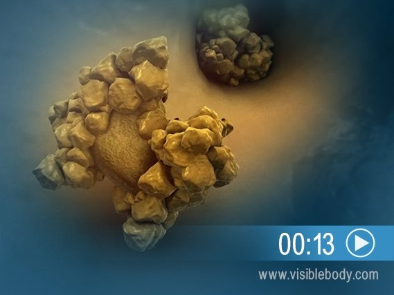 Click to play an animation of kidney stone formation in the urinary tract