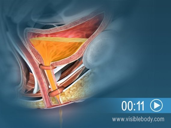 Click to play an animation of the sphincter weakening and causing bladder control issues