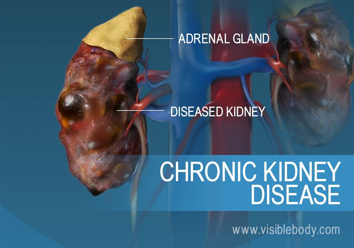 A comparison of healthy and diseased kidneys