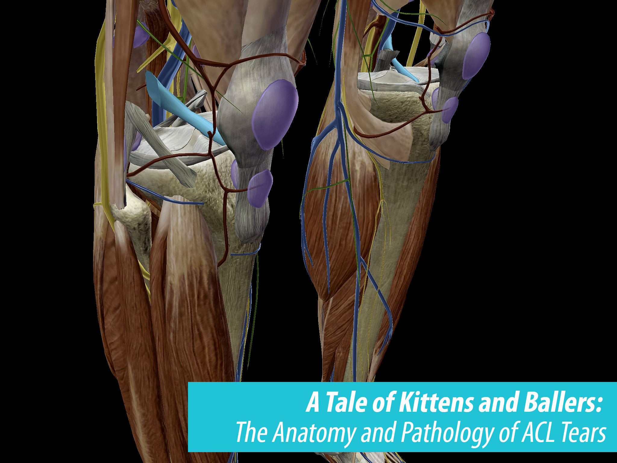 A Tale of Kittens and Ballers: The Anatomy and Pathology of ACL Tears