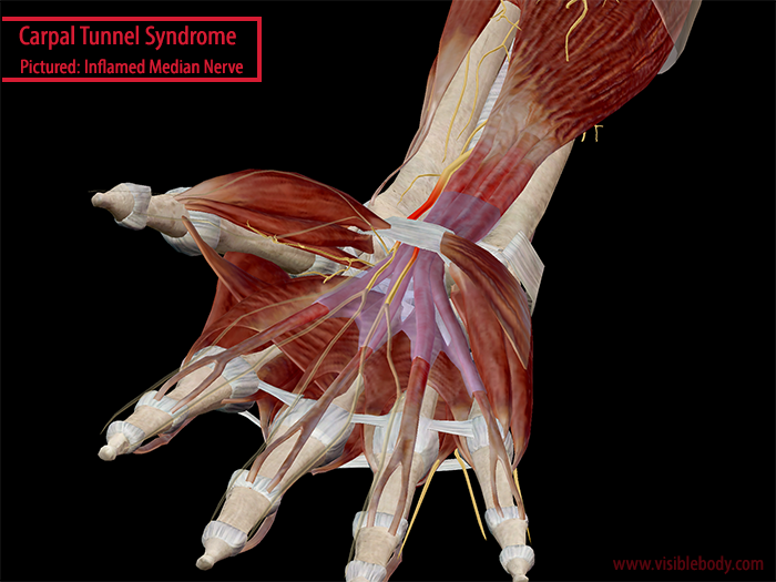 Into The Carpal Tunnel: Anatomy & Pathology of Carpal Tunnel Syndrome