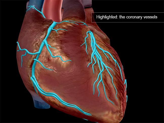 Cardiovascular-disease-coronary-vessels-heart-myocardial-infarction