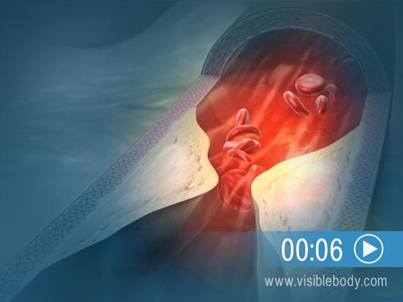 Animation der koronaren Herzkrankheit hier starten