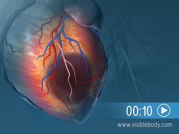 An animation of heart tissue damage due to a myocardial infarction