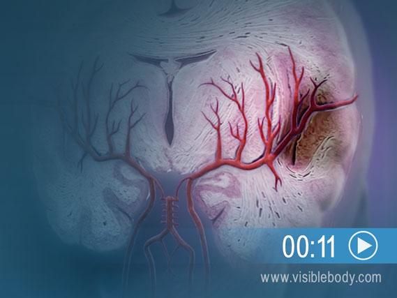 Animation des Gewebeschadens bei einem ischämischen Gehirnschlag hier starten