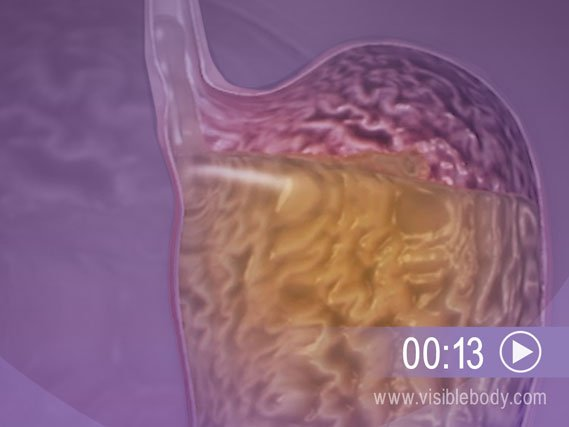 Click to play an animation of Gastroesphageal Reflux Disease