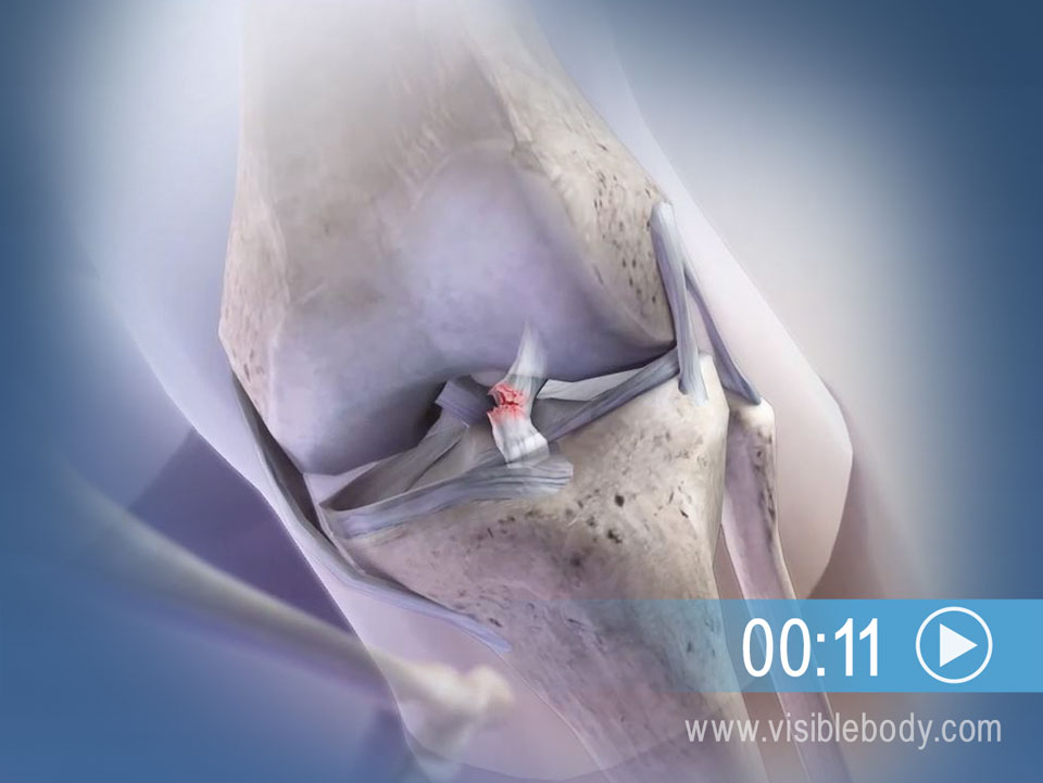 A Sharp Knee Movement Can Lead to an ACL Tear
