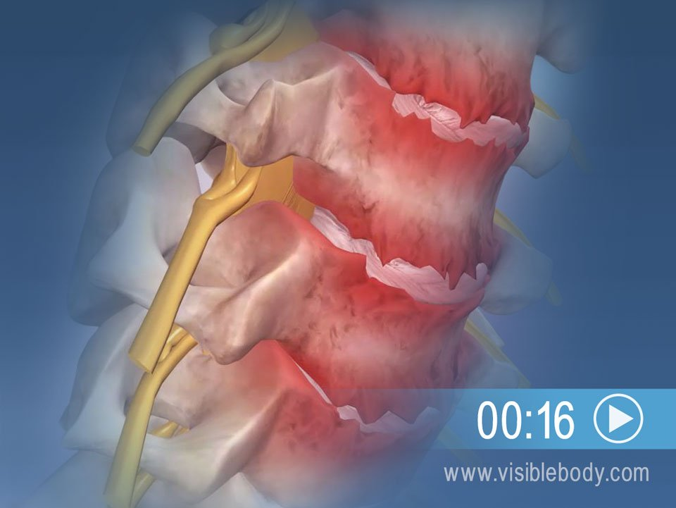 Cartilage Degenerating Over Time May Lead to Cervical Spondylosis