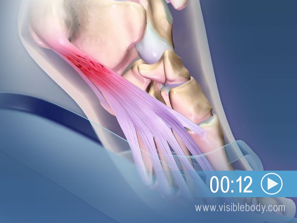 Plantar Fasciitis Can Result from Repeated Foot Strain