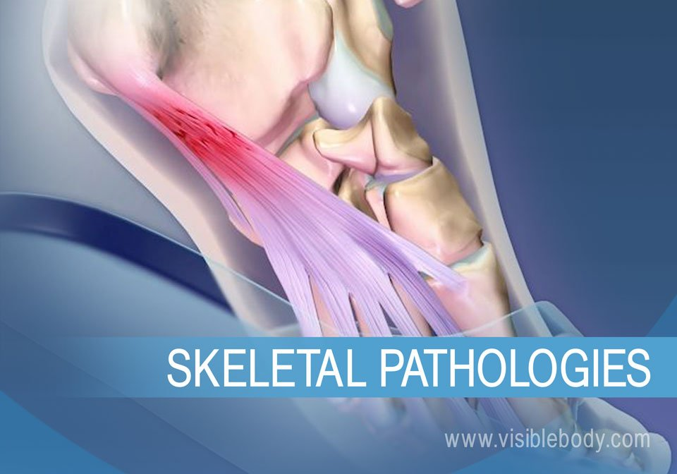 Skeletal-Pathologies.jpg