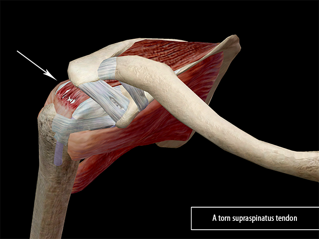 Learn Muscle Anatomy: Of Dads and Rotator Cuff Injuries