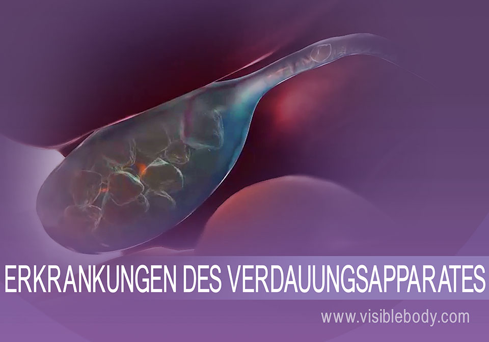 Gallensteine als Beispiel einer Erkrankung des Verdauungssystems