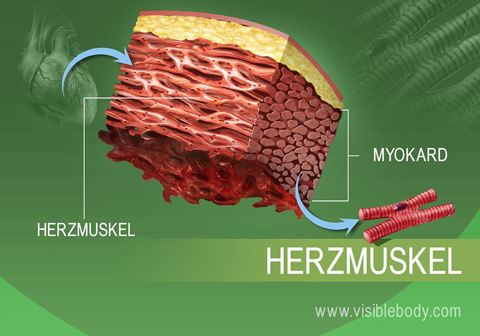 Vergrößerung des Herzmuskelgewebes im menschlichen Körper