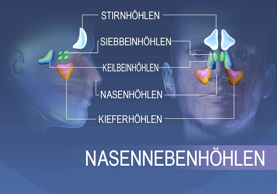 Lokalisation der Nasennebenhöhlen: Stirnbein, Siebbein, Keilbein und Oberkiefer