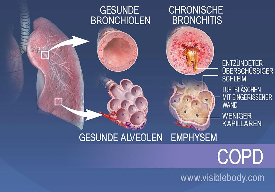 Bei Patienten mit chronischer Bronchitis sind die Bronchiolen entzündet und produzieren zu viel Schleim. Bei Patienten mit Lungenemphysem sind die Lungenbläschen zerrissen und weisen weniger Kapillaren auf.