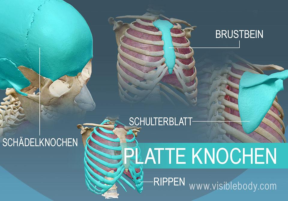 Beispiel der vier unterschiedlichen Arten platter Knochen