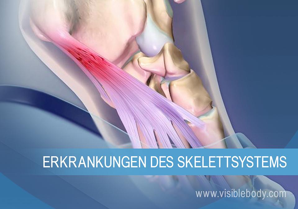 Die unten genannten Erkrankungen können auftreten, wenn Überbelastung und Alterung das Skelettsystem beeinträchtigen.