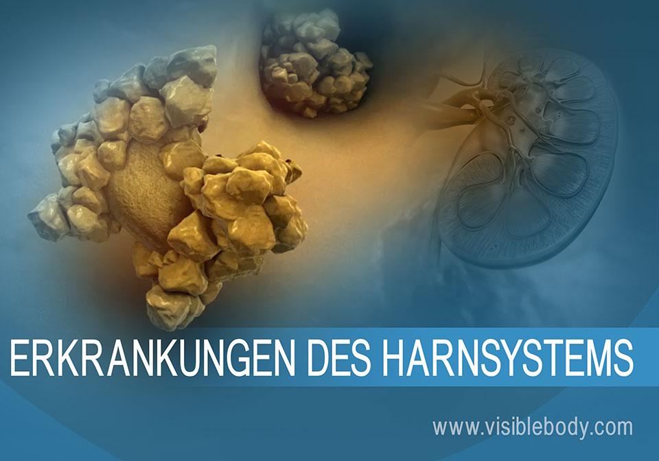 Übersichtsdarstellung häufiger Nierenerkrankungen