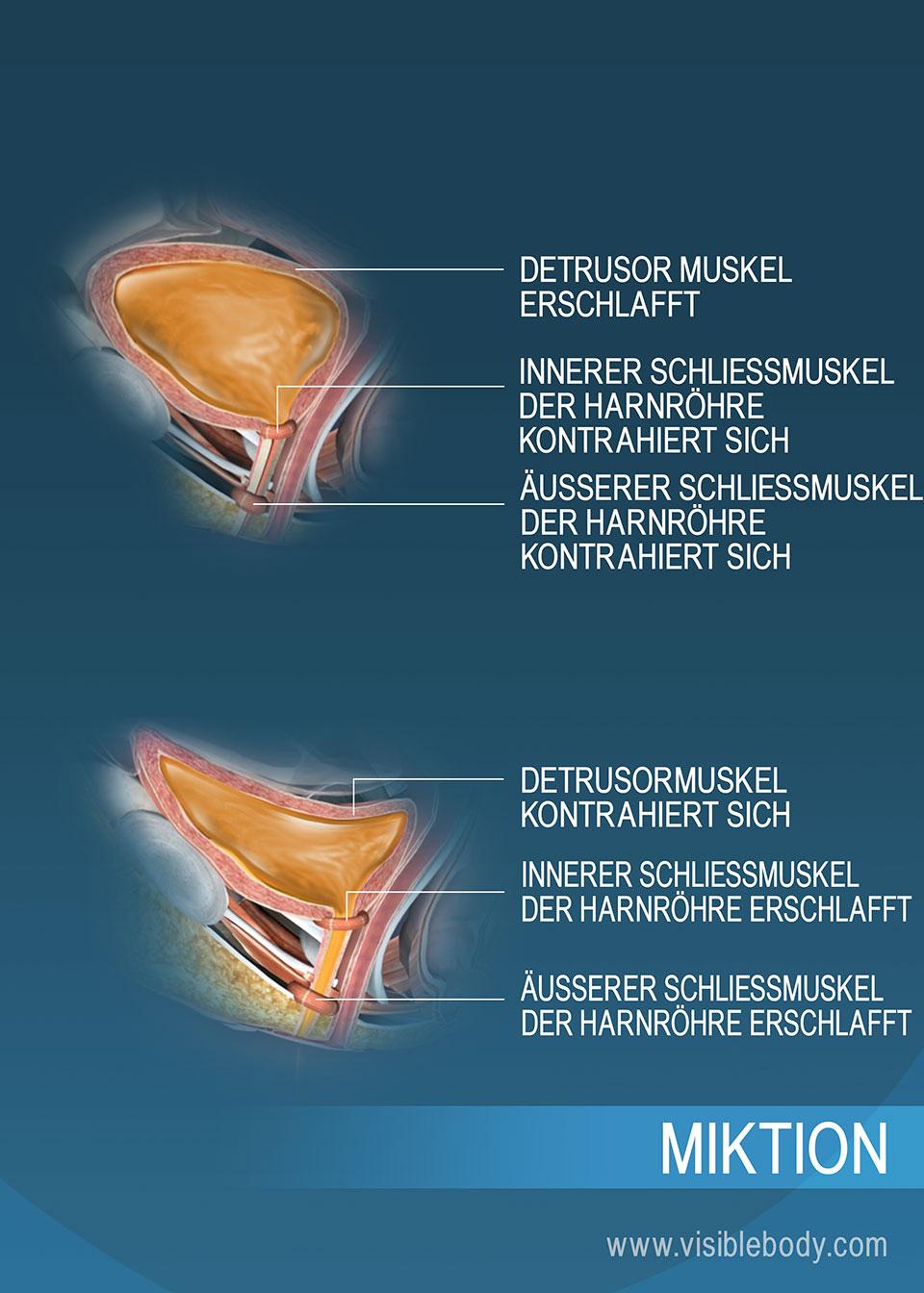 Eine Harnblase mit gesammeltem Urin und eine Harnblase im Zustand der Entleerung – jeweils mit den Harnröhrenschließmuskeln und dem Detrusormuskel, die den Vorgang erleichtern