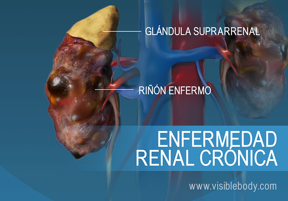 Comparación de riñones sanos y enfermos