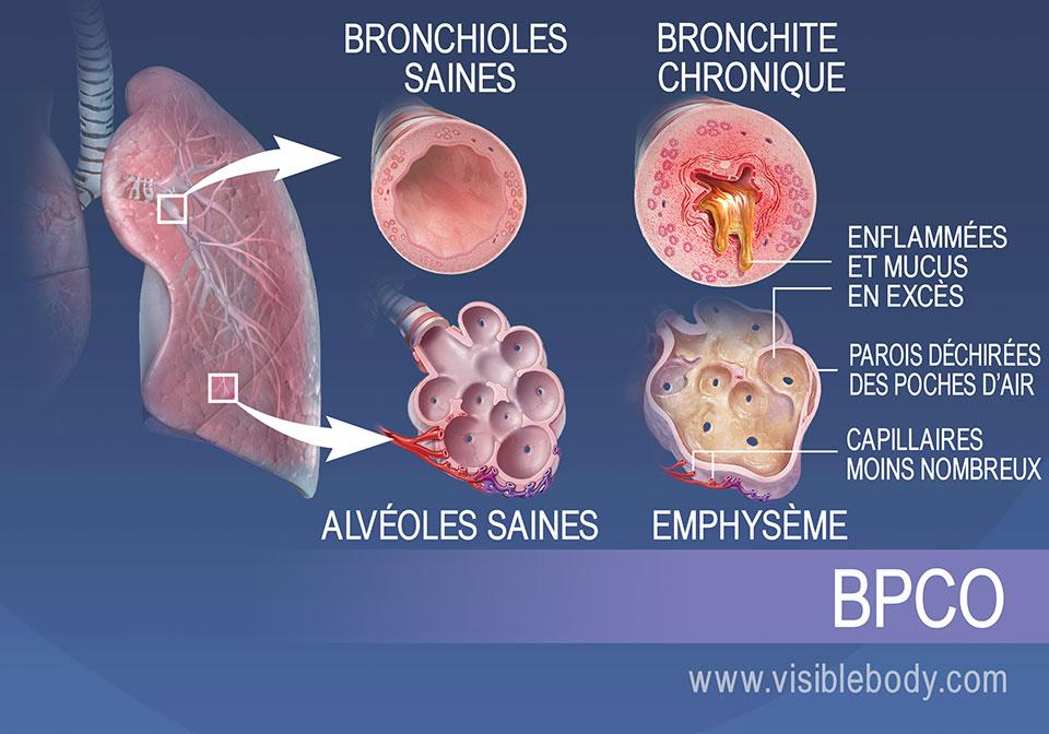 Les bronchioles des personnes souffrant de bronchite chronique sont enflammées et produisent trop de mucus. Les alvéoles des personnes souffrant d'emphysème sont déchirées et présentent moins de capillaires.