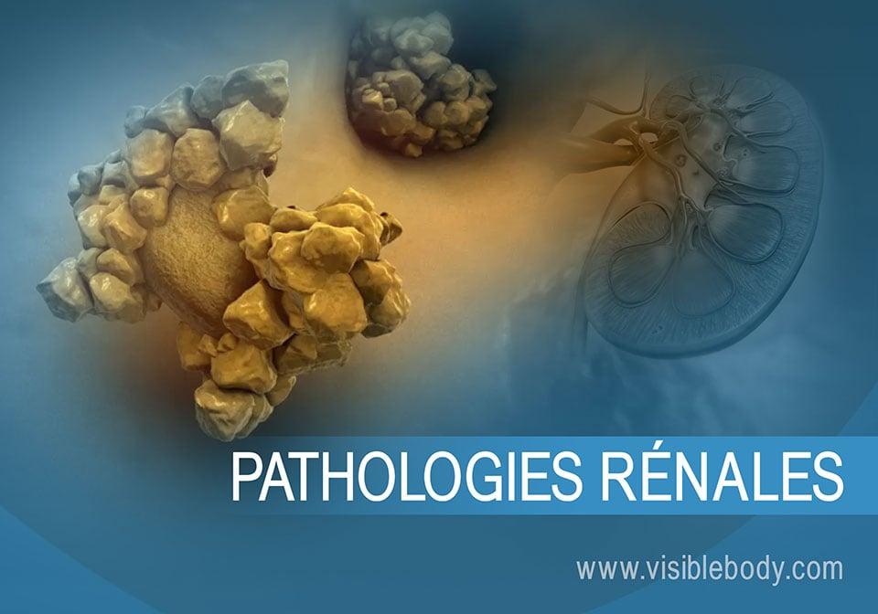 Image résumant les maladies et les troubles touchant les reins