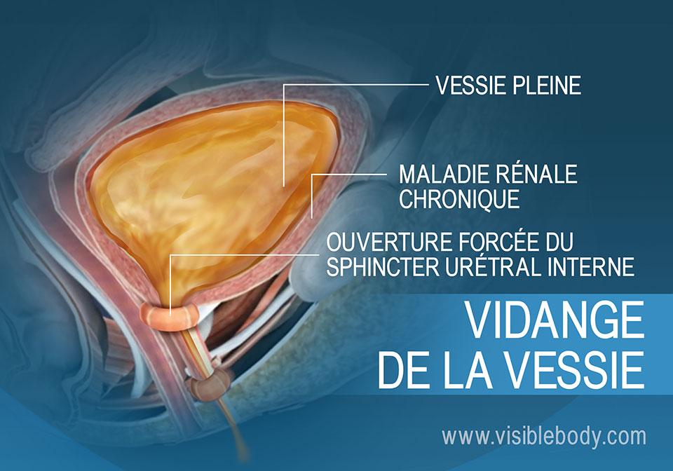 Vessie pleine et muscles de la miction responsables du besoin d'uriner.