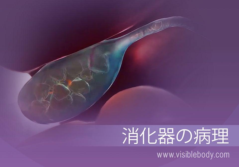 胆石、および消化器系の病態例