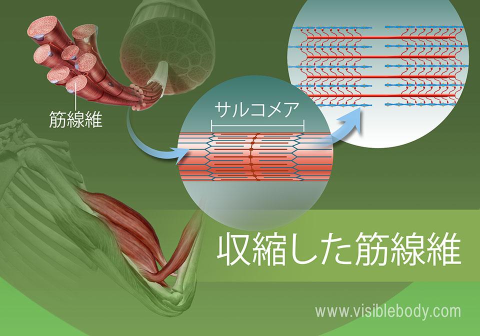 サルコメア(筋節)の収縮状態