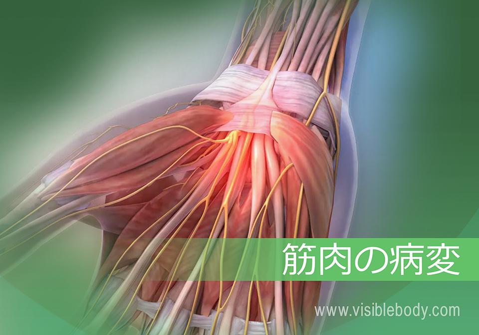 筋肉の病理