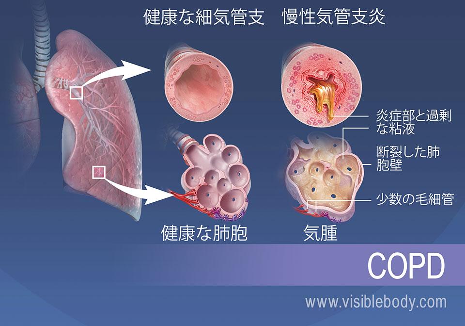 慢性気管支炎を起こした細気管支は、炎症を起こし過剰な粘液が産生されます。 肺気腫があると肺胞が破れ、毛細血管が少なくなります。