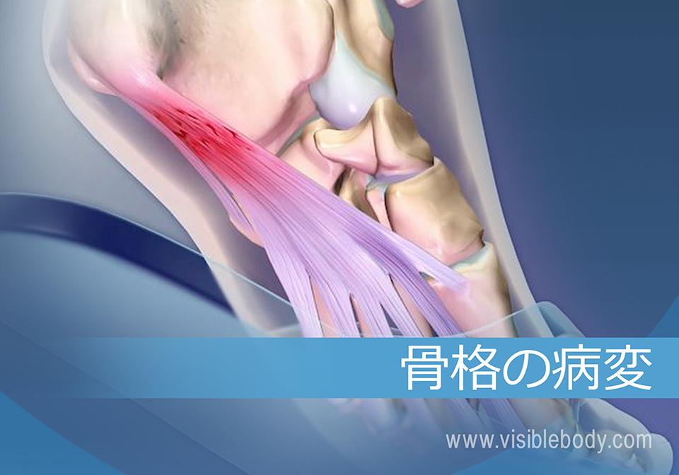 骨格系の病理