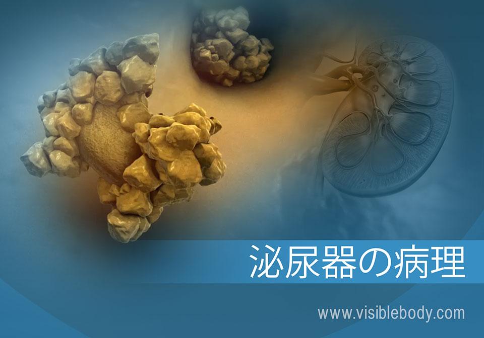 腎臓疾患と障害の概略の画像